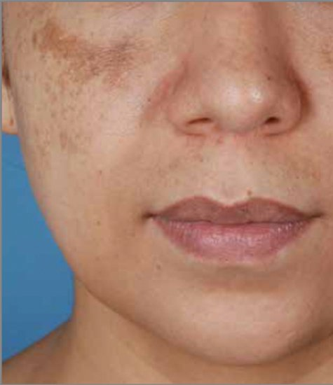 MELASMA-TREATMENT-LONDON