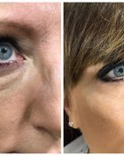 EYE REJUVENATION OPTIONS