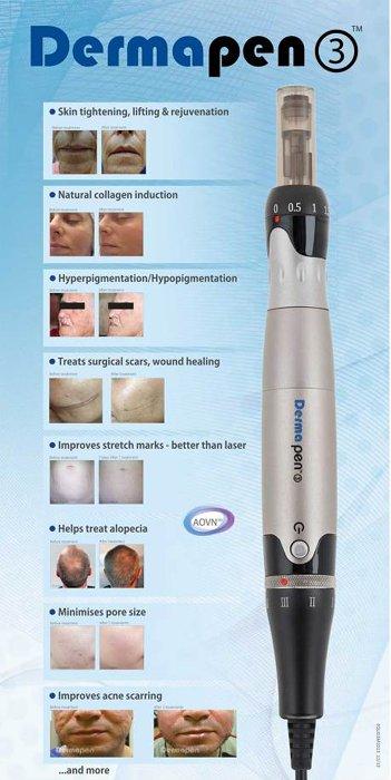 Dermapen Skin Rejuvenation & Scar Treatment