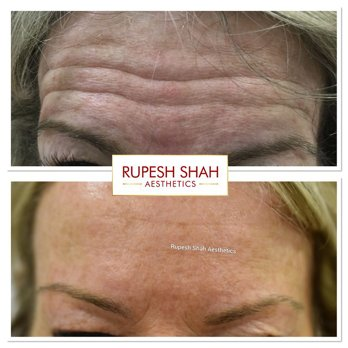 Botox-Before-and-After-Photo-Forehead-Lines-1