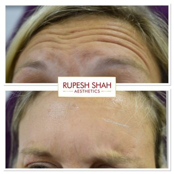 Botox before and after on forehead