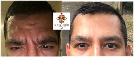 Glabella-Before-and-after